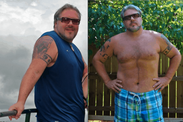 The Secret I'm Ashamed To Tell You (Living With Diabetes)